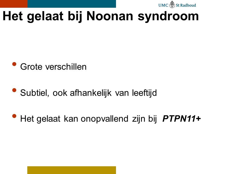 Het gelaat bij Noonan syndroom Grote verschillen Subtiel, ook afhankelijk van leeftijd Het gelaat kan onopvallend zijn bij PTPN11+