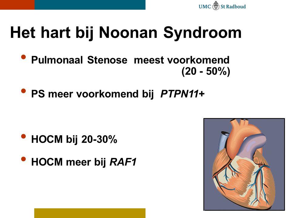 Het hart bij Noonan Syndroom Pulmonaal Stenose meest voorkomend (20 - 50%) PS meer voorkomend bij PTPN11+ HOCM bij 20-30% HOCM meer bij RAF1
