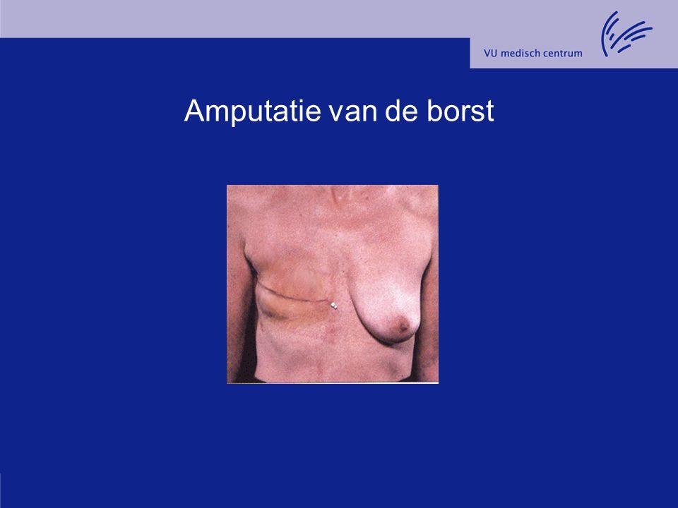 Amputatie van de borst