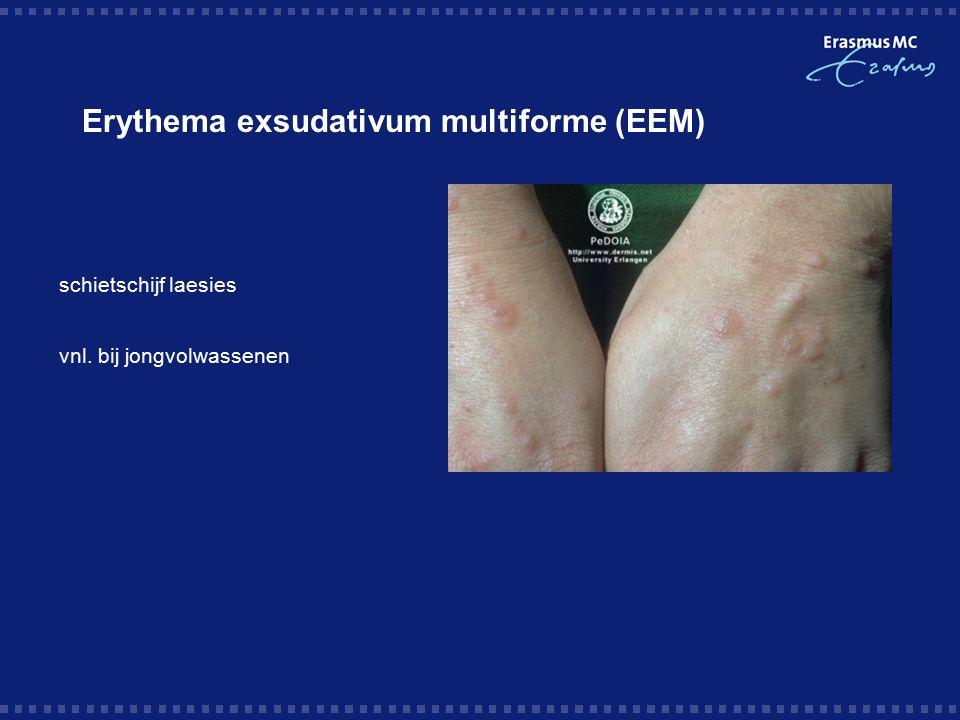 Erythema exsudativum multiforme (EEM) schietschijf laesies vnl. bij jongvolwassenen