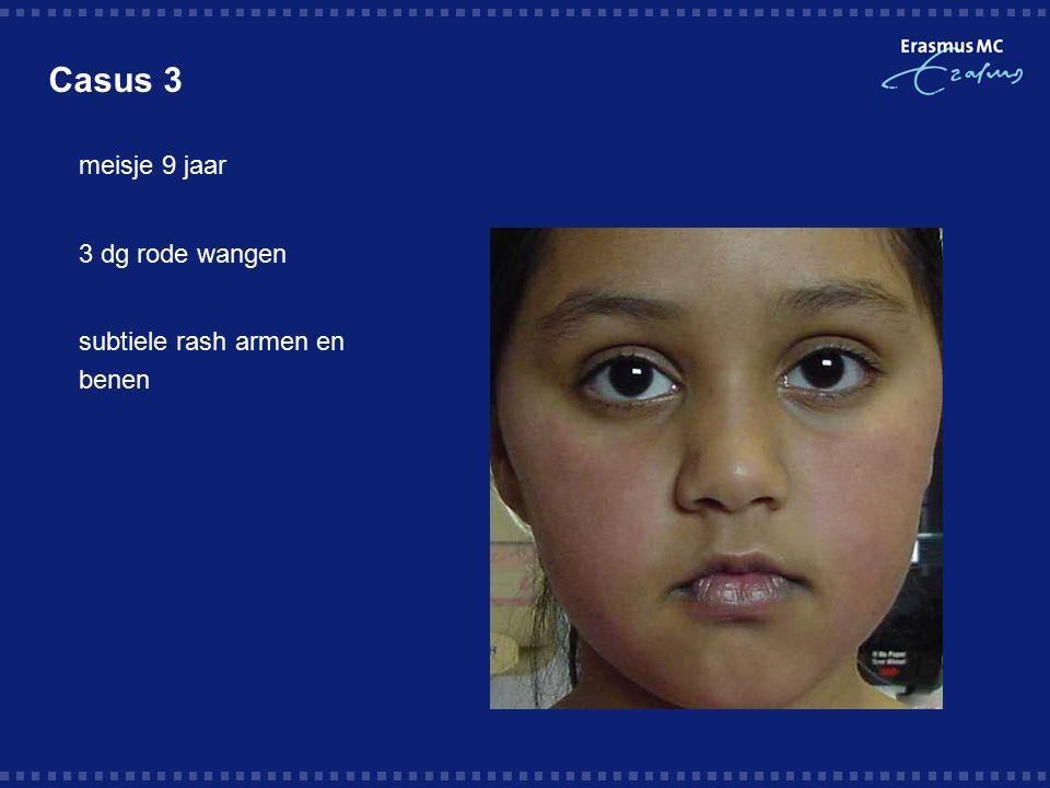 Casus 3  meisje 9 jaar  3 dg rode wangen  subtiele rash armen en benen