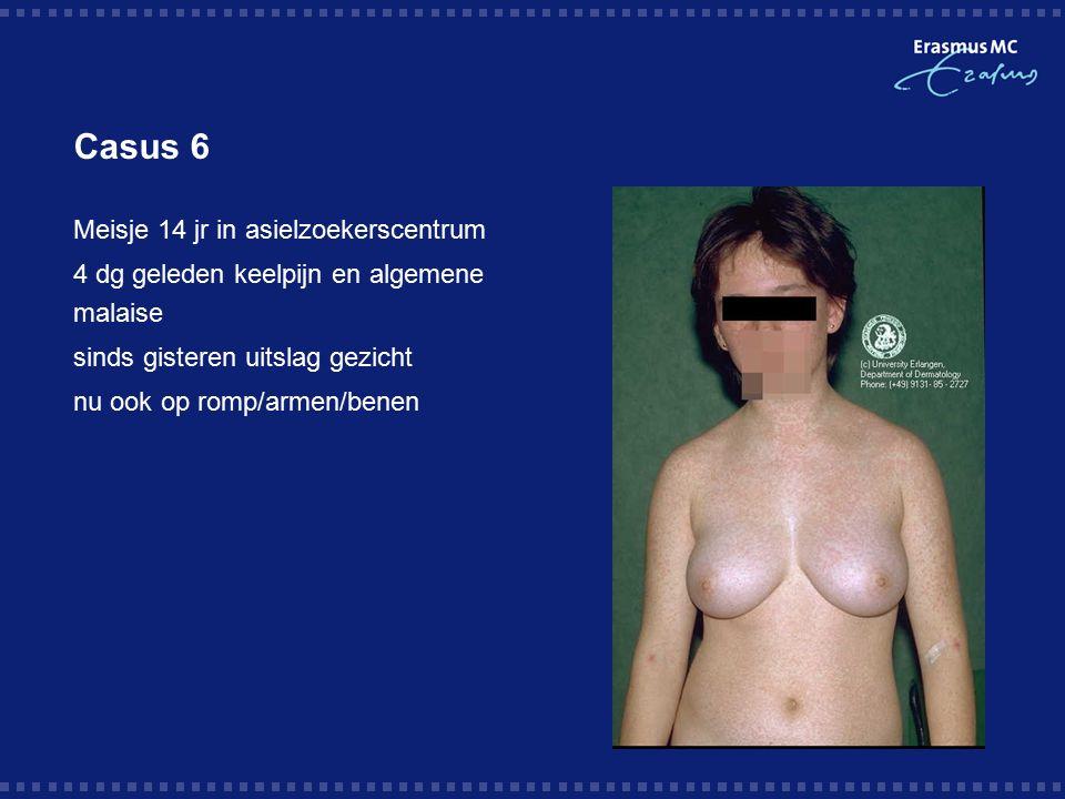 Casus 6  Meisje 14 jr in asielzoekerscentrum  4 dg geleden keelpijn en algemene malaise  sinds gisteren uitslag gezicht  nu ook op romp/armen/benen