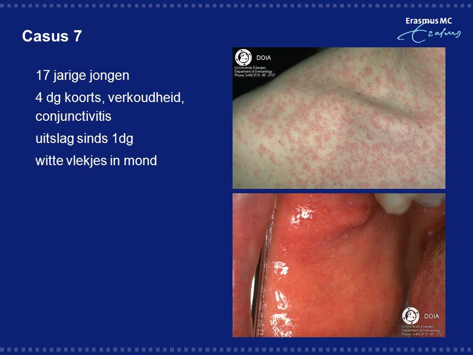 Casus 7  17 jarige jongen  4 dg koorts, verkoudheid, conjunctivitis  uitslag sinds 1dg  witte vlekjes in mond