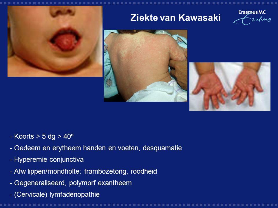 Ziekte van Kawasaki - Koorts > 5 dg > 40º - Oedeem en erytheem handen en voeten, desquamatie - Hyperemie conjunctiva - Afw lippen/mondholte: frambozetong, roodheid - Gegeneraliseerd, polymorf exantheem - (Cervicale) lymfadenopathie