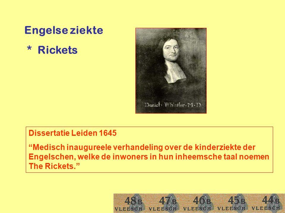 """Engelse ziekte * Rickets Dissertatie Leiden 1645 """"Medisch inaugureele verhandeling over de kinderziekte der Engelschen, welke de inwoners in hun inhee"""
