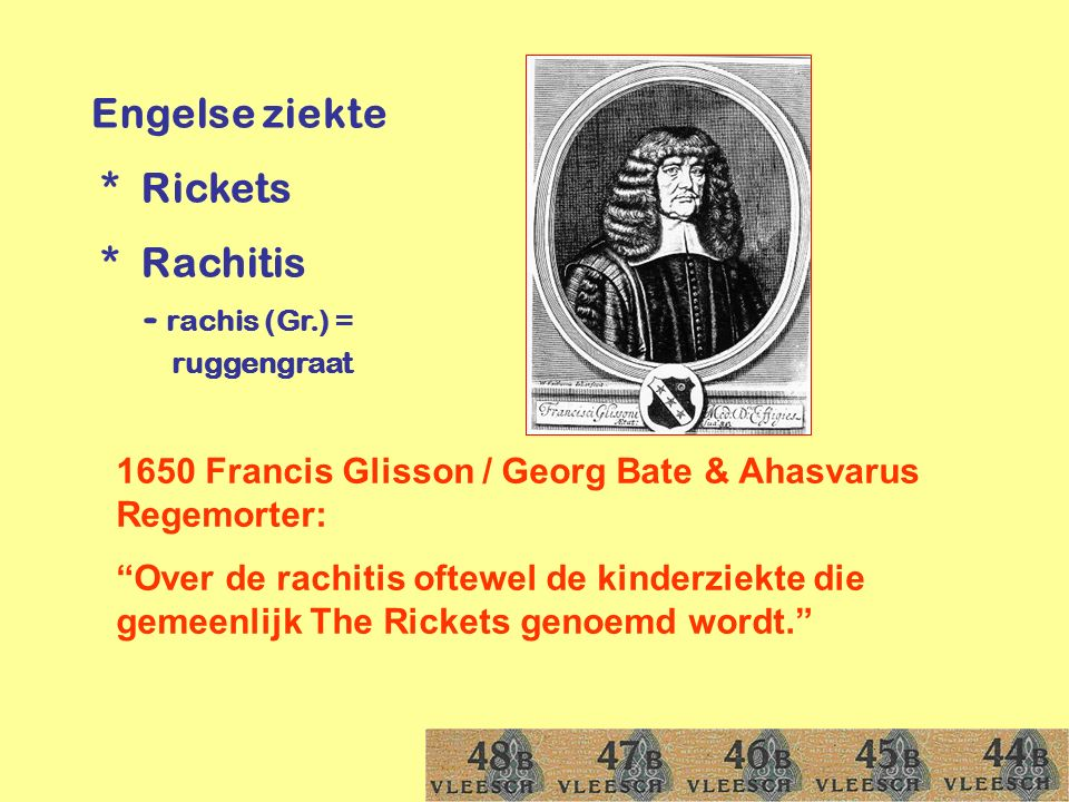 "Engelse ziekte * Rickets * Rachitis - rachis (Gr.) = ruggengraat 1650 Francis Glisson / Georg Bate & Ahasvarus Regemorter: ""Over de rachitis oftewel d"