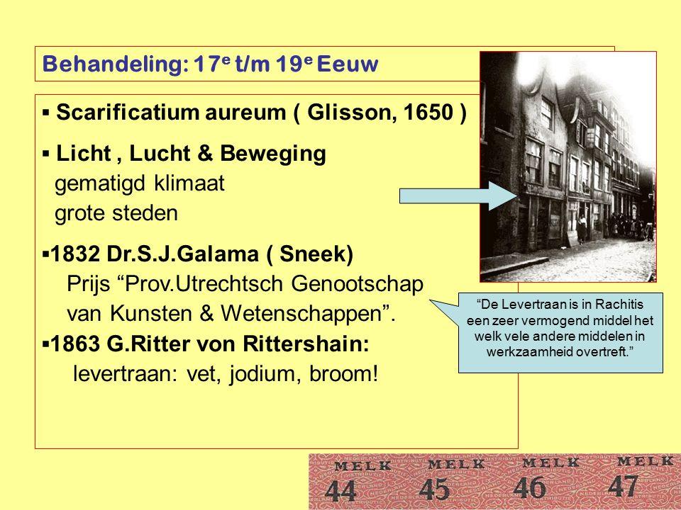 Behandeling: 17 e t/m 19 e Eeuw ▪ Scarificatium aureum ( Glisson, 1650 ) ▪ Licht, Lucht & Beweging gematigd klimaat grote steden ▪1832 Dr.S.J.Galama (