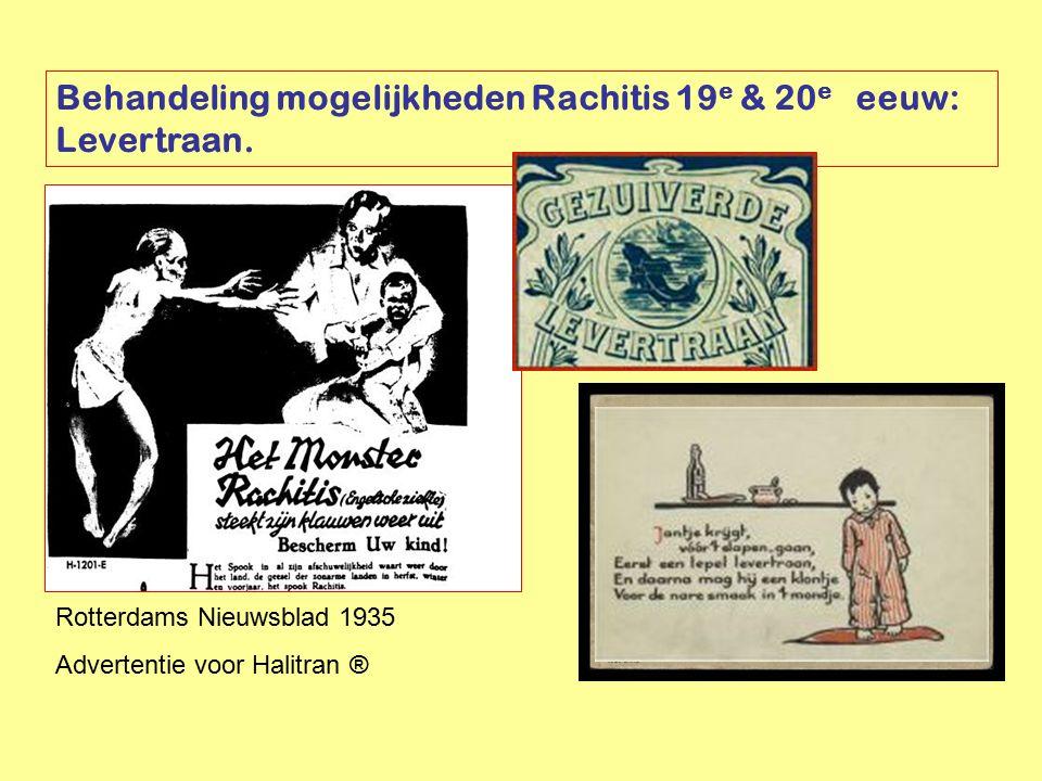 Rotterdams Nieuwsblad 1935 Advertentie voor Halitran ® Behandeling mogelijkheden Rachitis 19 e & 20 e eeuw: Levertraan.