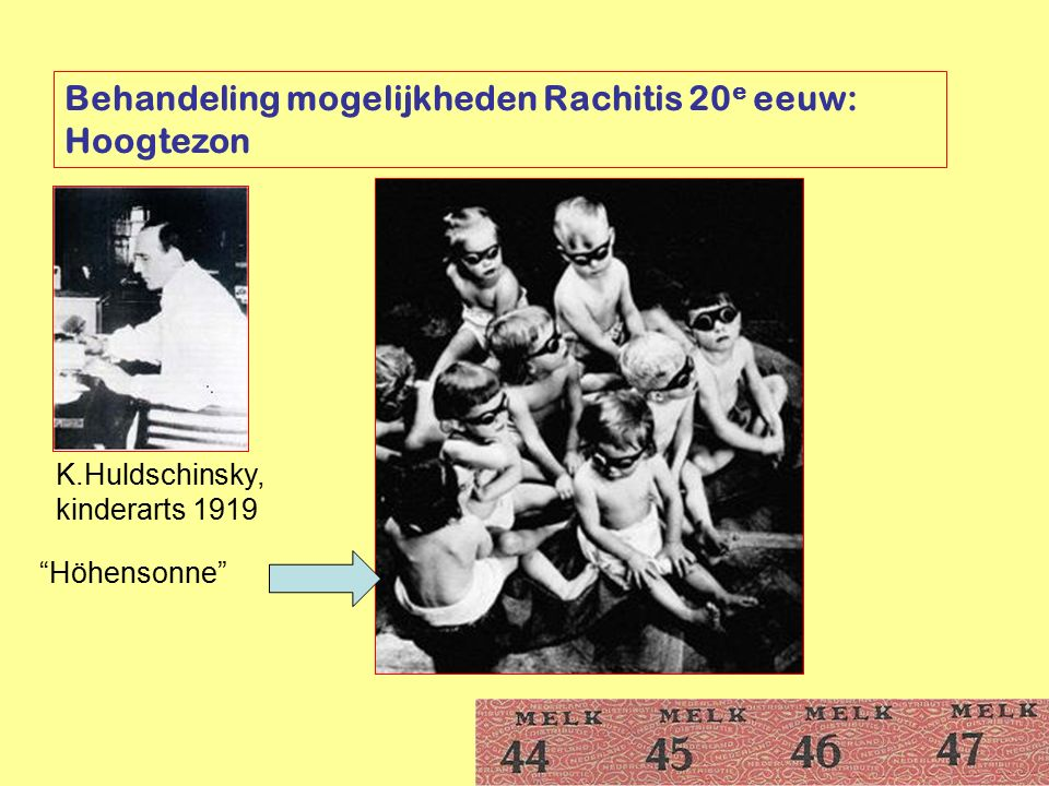 """Behandeling mogelijkheden Rachitis 20 e eeuw: Hoogtezon K.Huldschinsky, kinderarts 1919 """"Höhensonne"""""""