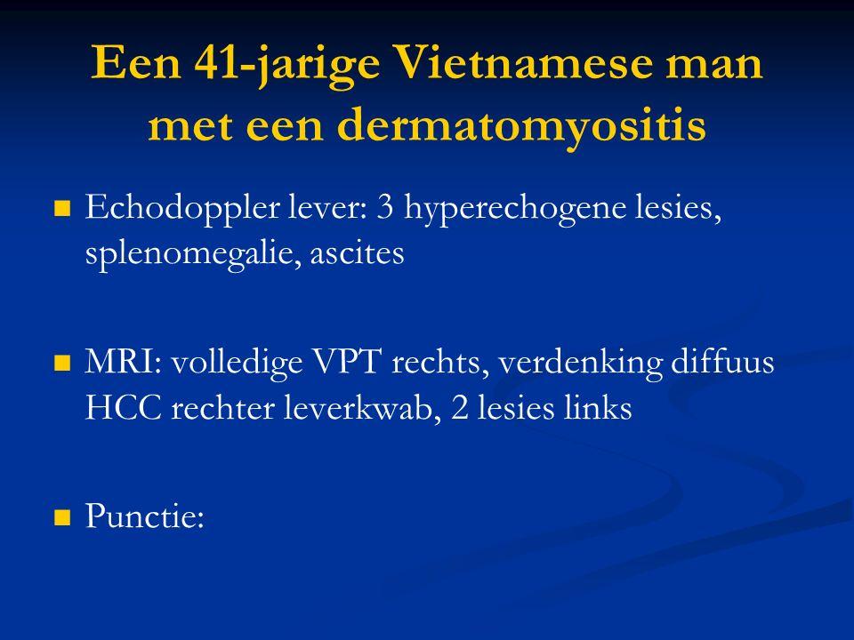 Een 41-jarige Vietnamese man met een dermatomyositis Echodoppler lever: 3 hyperechogene lesies, splenomegalie, ascites MRI: volledige VPT rechts, verdenking diffuus HCC rechter leverkwab, 2 lesies links Punctie: