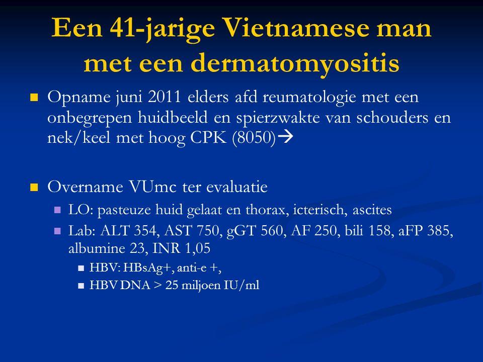 Een 41-jarige Vietnamese man met een dermatomyositis Opname juni 2011 elders afd reumatologie met een onbegrepen huidbeeld en spierzwakte van schouders en nek/keel met hoog CPK (8050)  Overname VUmc ter evaluatie LO: pasteuze huid gelaat en thorax, icterisch, ascites Lab: ALT 354, AST 750, gGT 560, AF 250, bili 158, aFP 385, albumine 23, INR 1,05 HBV: HBsAg+, anti-e +, HBV DNA > 25 miljoen IU/ml