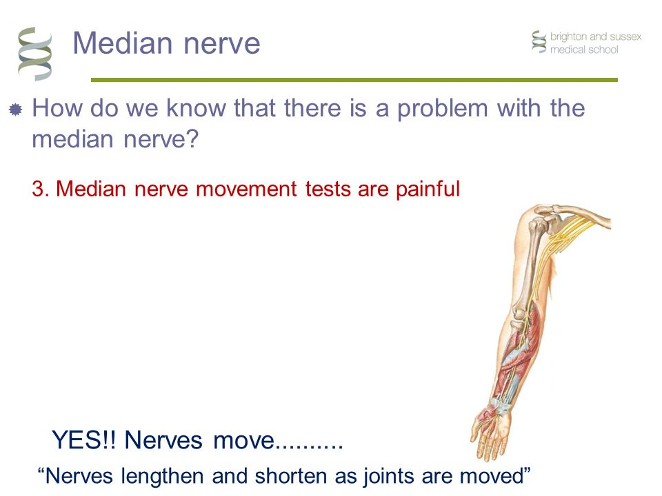 "Median nerve  How do we know that there is a problem with the median nerve? 3. Median nerve movement tests are painful YES!! Nerves move.......... ""N"