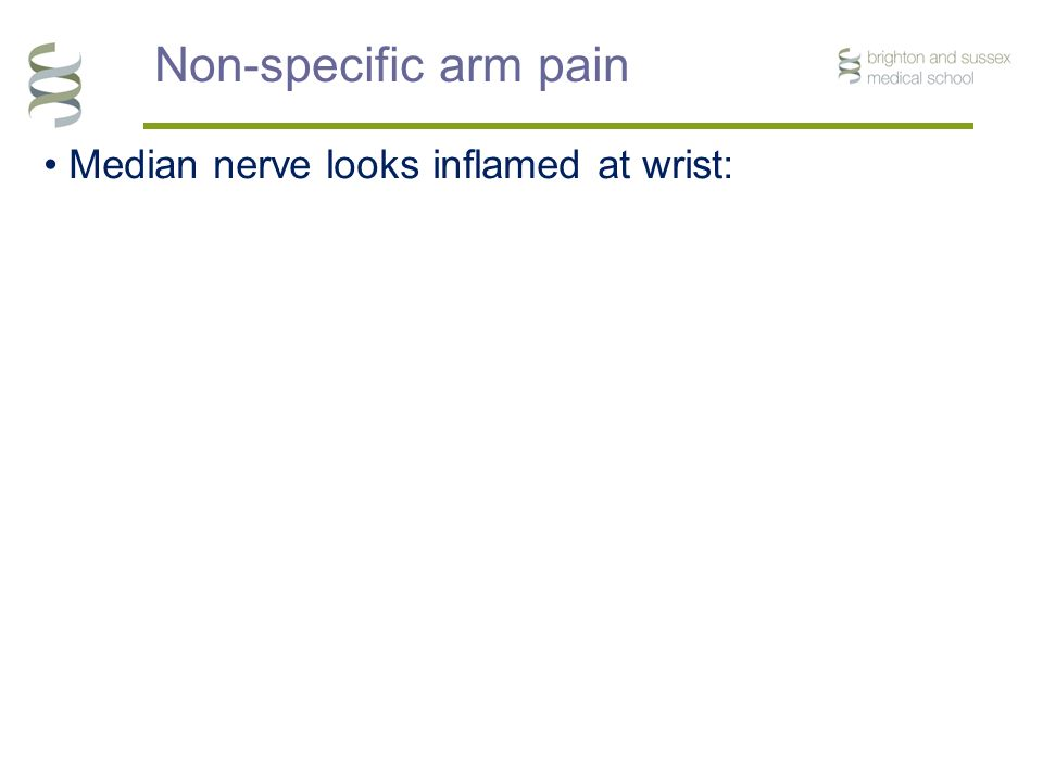 Non-specific arm pain Median nerve looks inflamed at wrist: