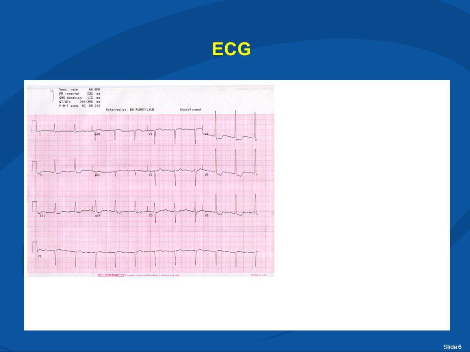 Slide 7 ECG Linkerventrikelhypertrofie: voor het vaststellen van LVH zijn verschillende criteria vastgesteld, de meest gebruikt is het criterium van Sokolow-Lyon: R in V5 of V6 + S in V1 > 35mm Antwoord a) is juist