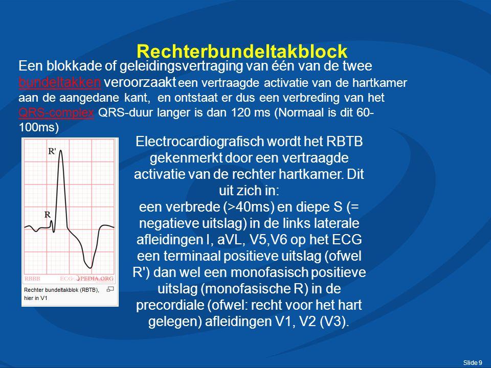 Slide 9 Rechterbundeltakblock Een blokkade of geleidingsvertraging van één van de twee bundeltakken veroorzaakt een vertraagde activatie van de hartkamer aan de aangedane kant, en ontstaat er dus een verbreding van het QRS-complex QRS-duur langer is dan 120 ms (Normaal is dit 60- 100ms) bundeltakken QRS-complex Electrocardiografisch wordt het RBTB gekenmerkt door een vertraagde activatie van de rechter hartkamer.