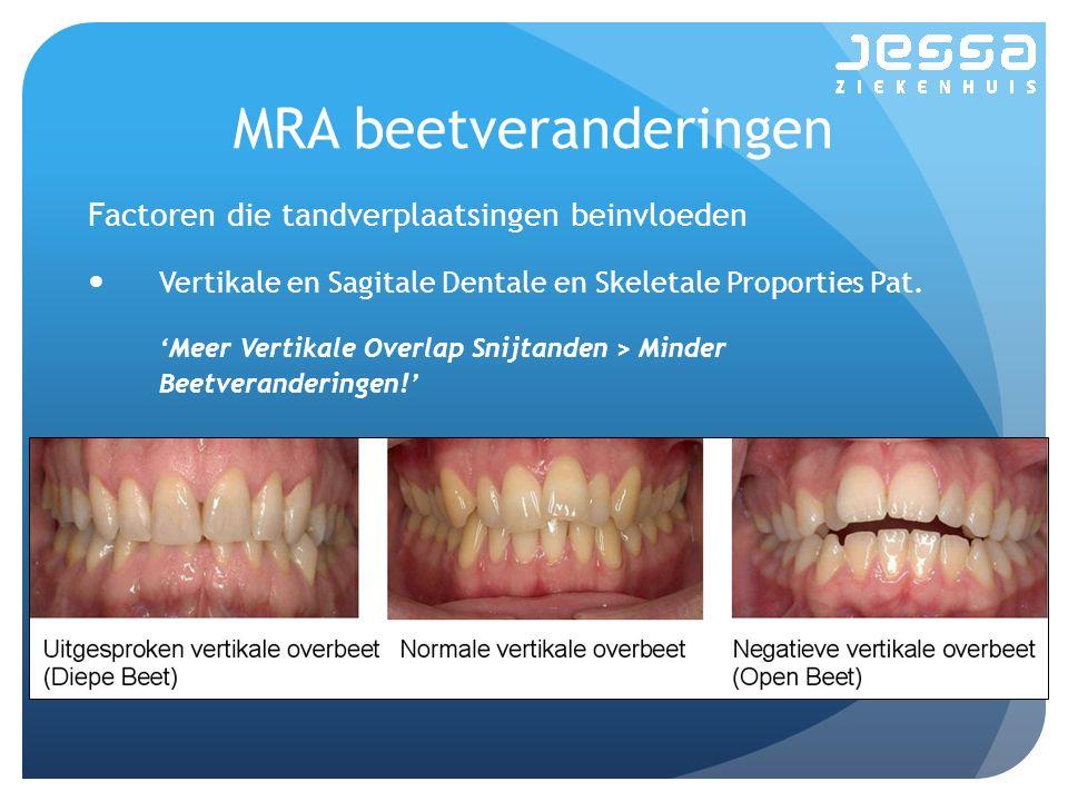 MRA beetveranderingen Factoren die tandverplaatsingen beinvloeden Vertikale en Sagitale Dentale en Skeletale Proporties Pat. 'Meer Vertikale Overlap S