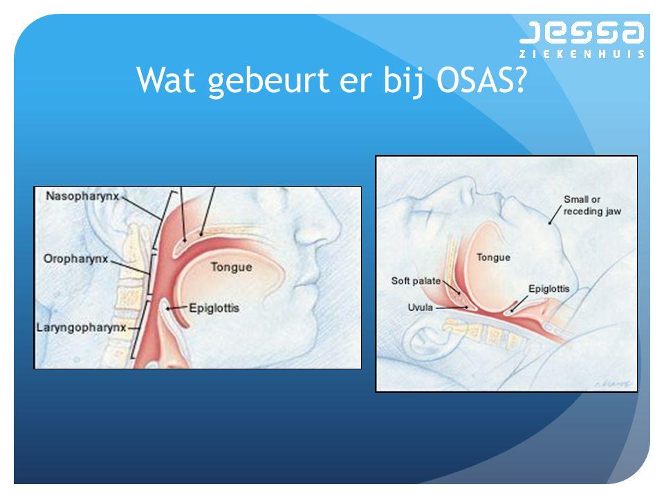 Wat gebeurt er bij OSAS?
