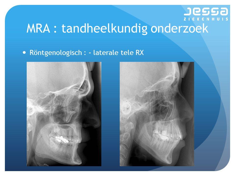MRA : tandheelkundig onderzoek Röntgenologisch : - laterale tele RX