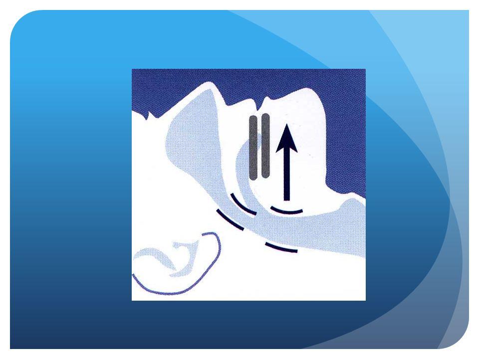 MRA : voorspellende variabelen Goede voorspellers : - AHI - Overgewicht (BMI) - Protrusiecapaciteit OK - Bouw aangezichtsskelet (retrognatie)