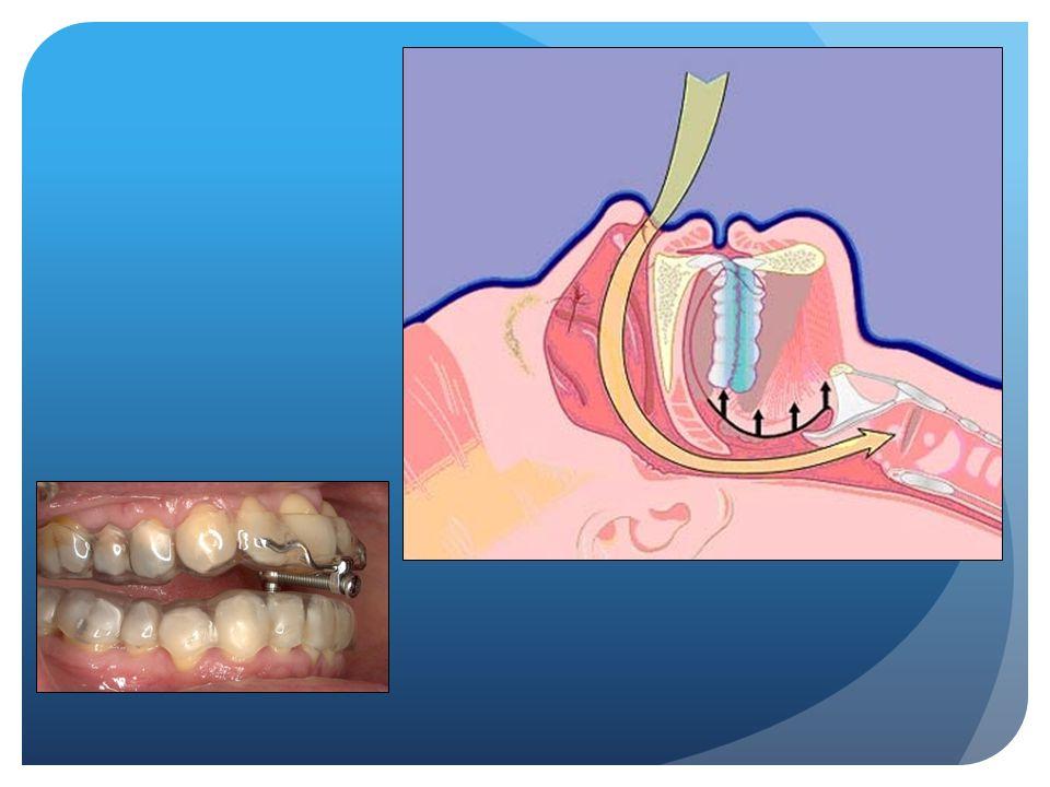 MRA neveneffecten Zeldzaam : - Fracturen gebitselementen/ kronen/ bruggen - Kokhalsreflex