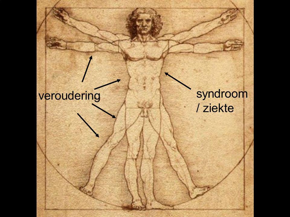 veroudering syndroom / ziekte