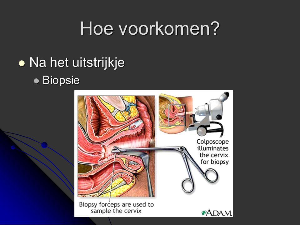 Hoe voorkomen? Na het uitstrijkje Na het uitstrijkje Biopsie Biopsie