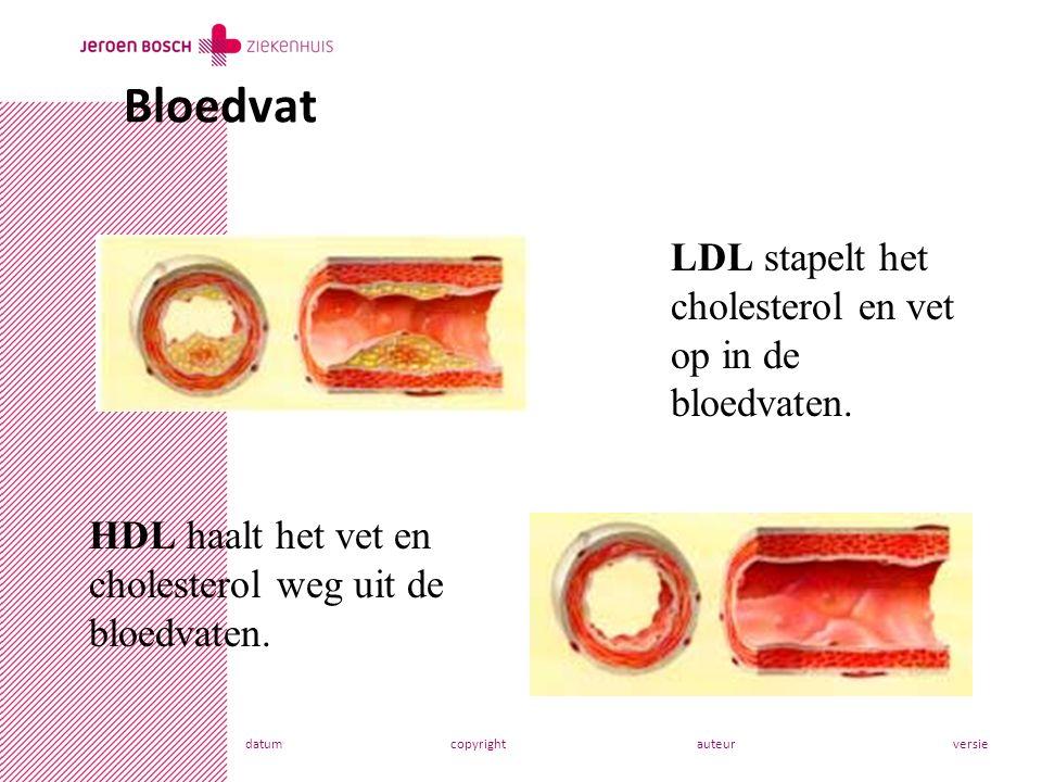 datumcopyrightauteurversie Bloedvat LDL stapelt het cholesterol en vet op in de bloedvaten.