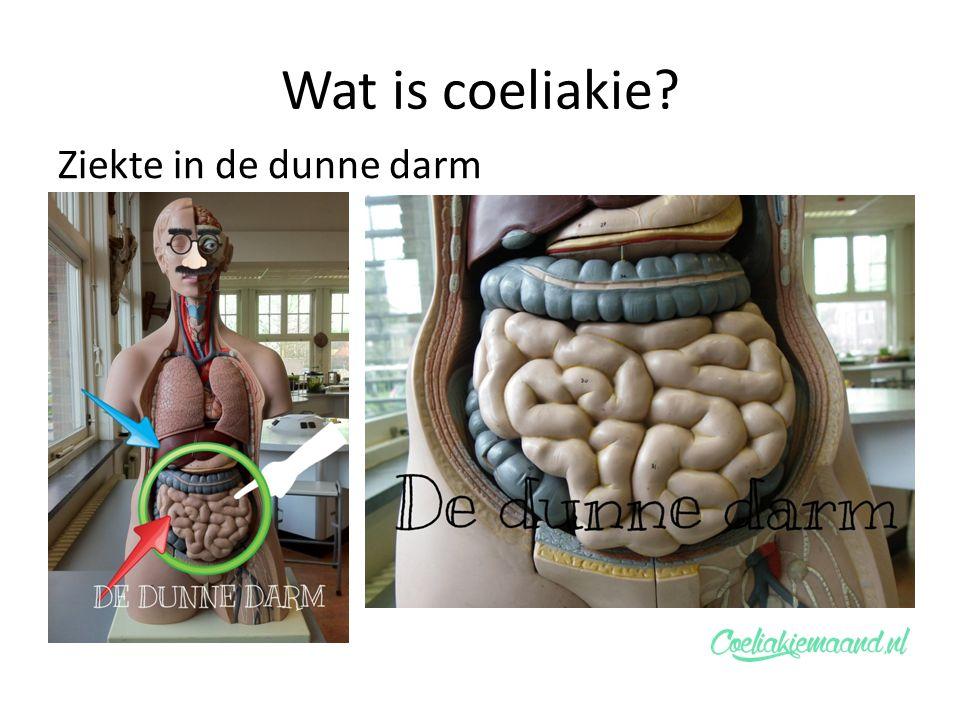 Wat is coeliakie Ziekte in de dunne darm