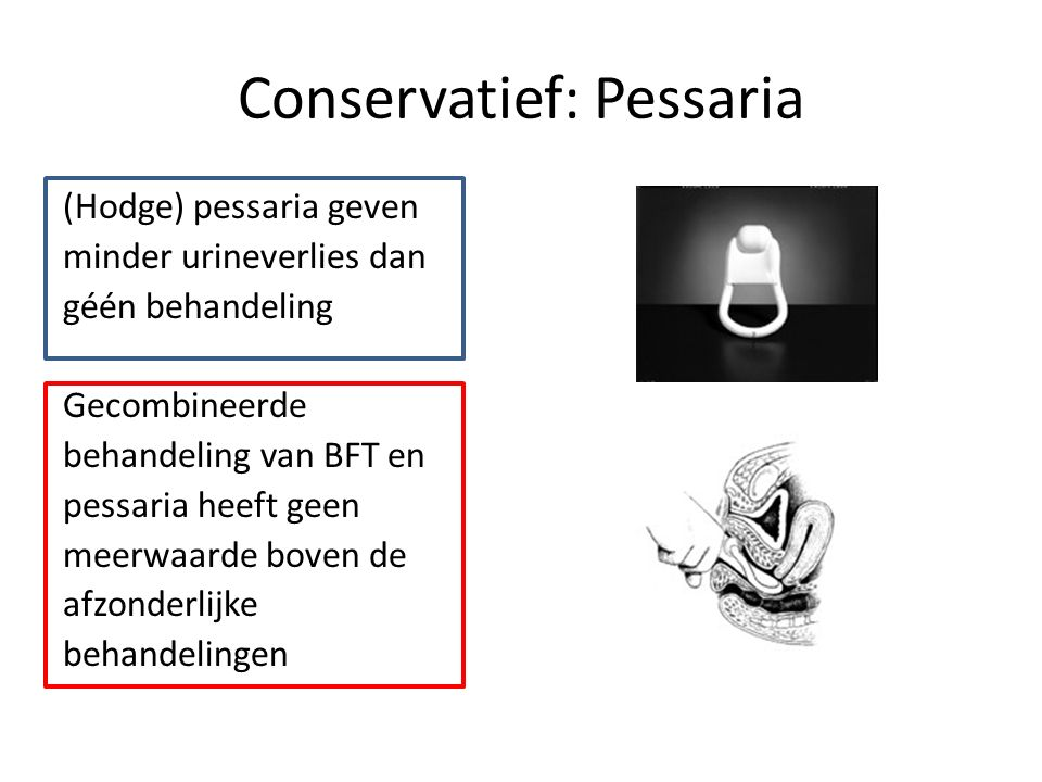 Conservatief: Pessaria (Hodge) pessaria geven minder urineverlies dan géén behandeling Gecombineerde behandeling van BFT en pessaria heeft geen meerwaarde boven de afzonderlijke behandelingen
