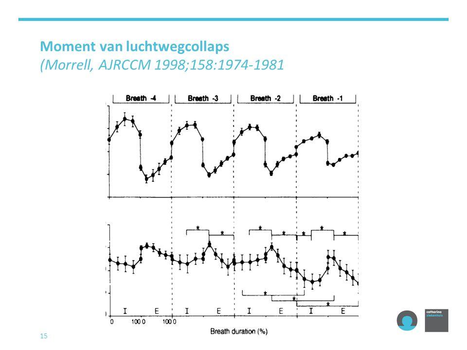 Moment van luchtwegcollaps (Morrell, AJRCCM 1998;158:1974-1981 15