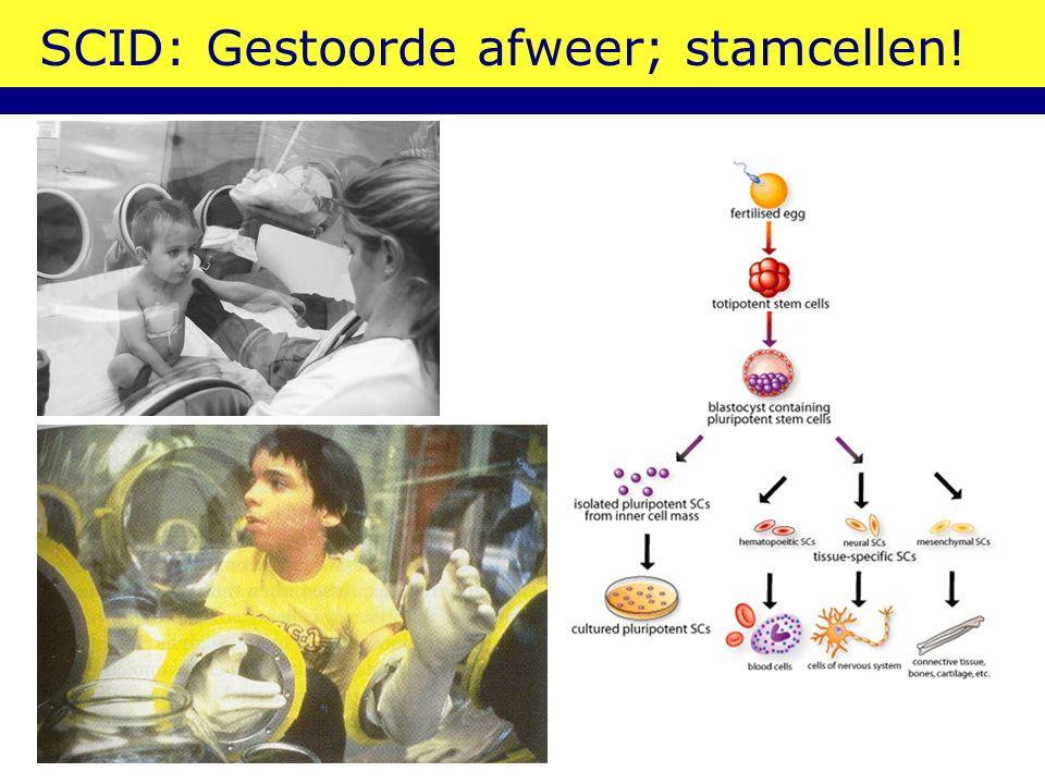 SCID: Gestoorde afweer; stamcellen!