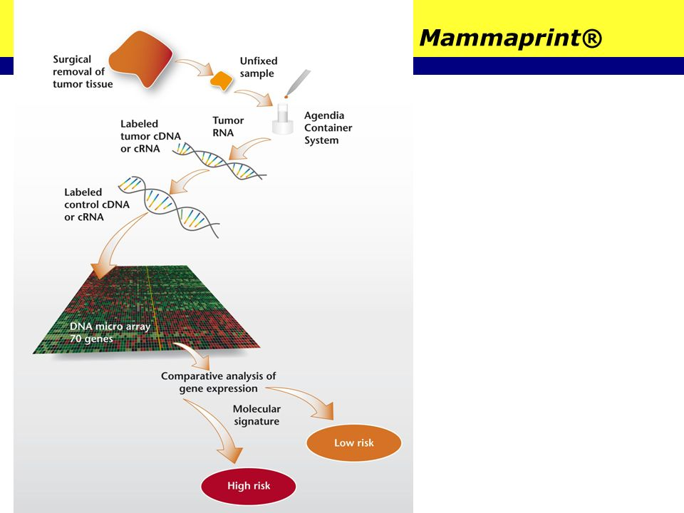 Mammaprint®