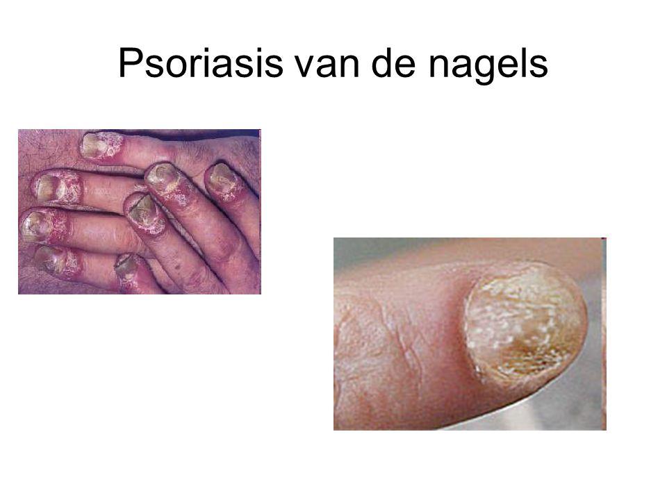 Pityriasis rosea Plaque mère →