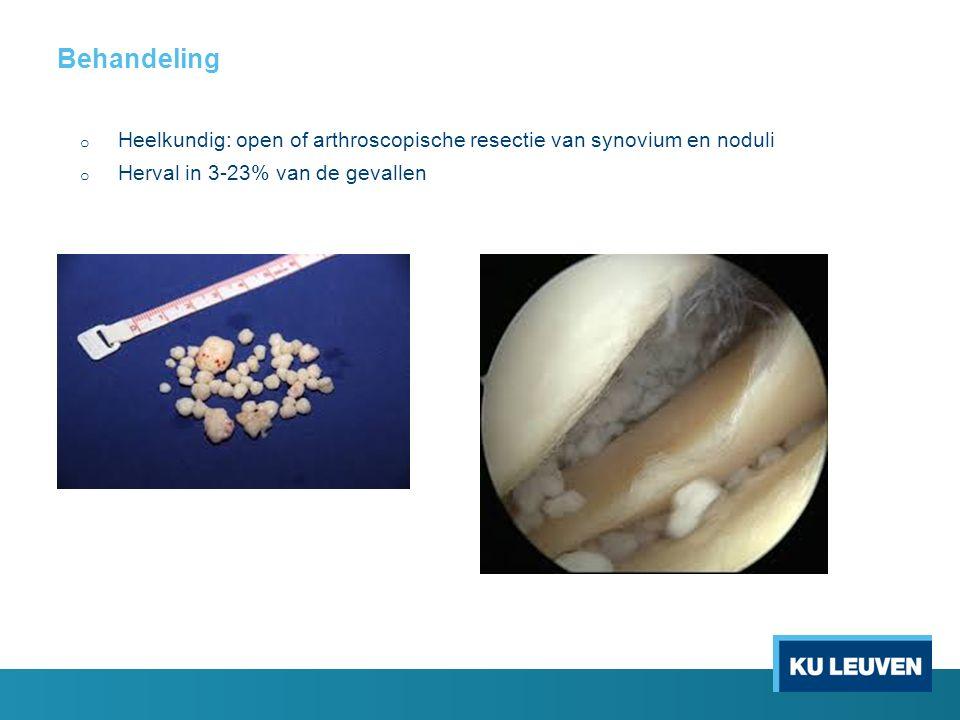Behandeling o Heelkundig: open of arthroscopische resectie van synovium en noduli o Herval in 3-23% van de gevallen