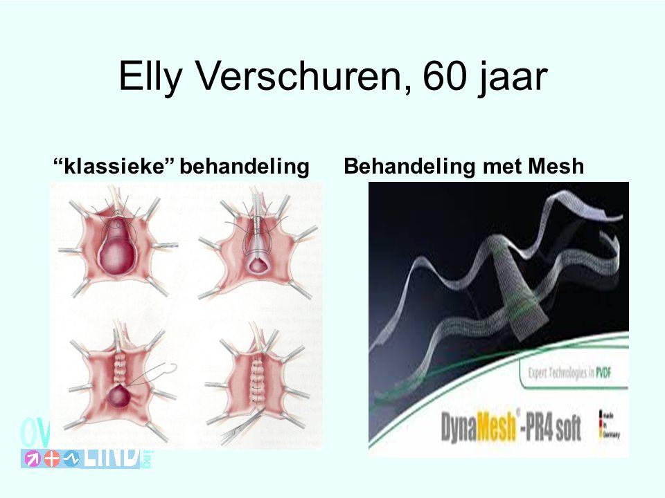 Elly Verschuren, 60 jaar klassieke behandelingBehandeling met Mesh