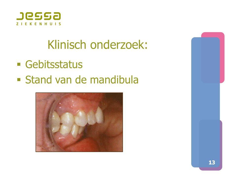 13 Klinisch onderzoek:  Gebitsstatus  Stand van de mandibula