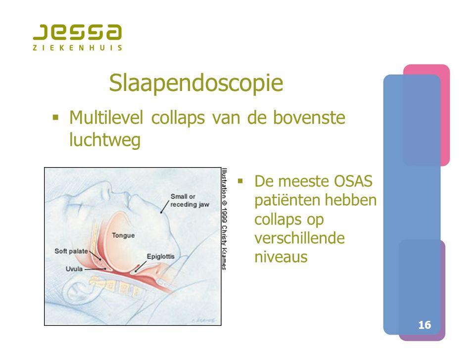 16 Slaapendoscopie  Multilevel collaps van de bovenste luchtweg  De meeste OSAS patiënten hebben collaps op verschillende niveaus
