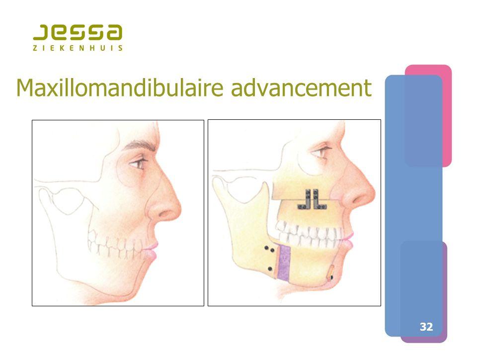 32 Maxillomandibulaire advancement
