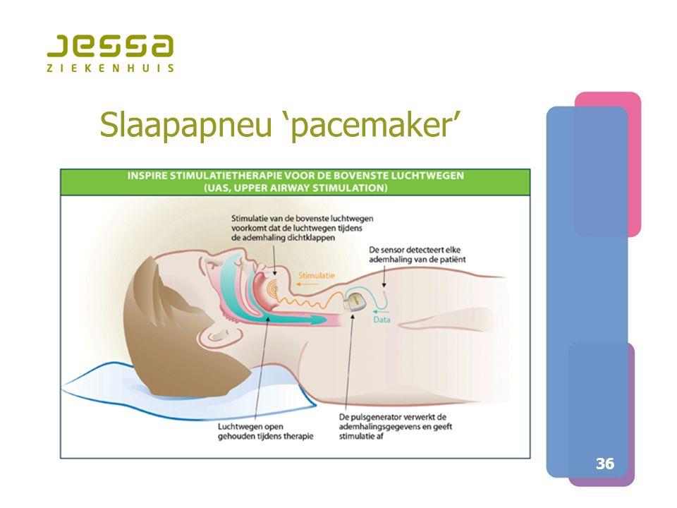 36 Slaapapneu 'pacemaker'