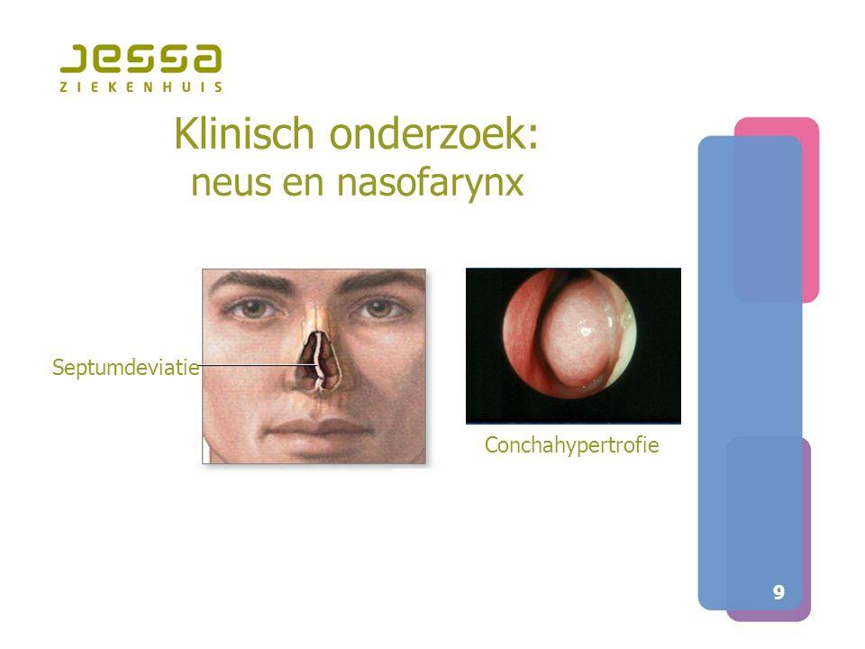 9 Klinisch onderzoek: neus en nasofarynx Septumdeviatie Conchahypertrofie
