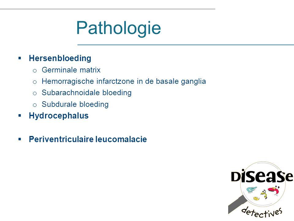 Pathologie  Hersenbloeding o Germinale matrix o Hemorragische infarctzone in de basale ganglia o Subarachnoidale bloeding o Subdurale bloeding  Hydrocephalus  Periventriculaire leucomalacie