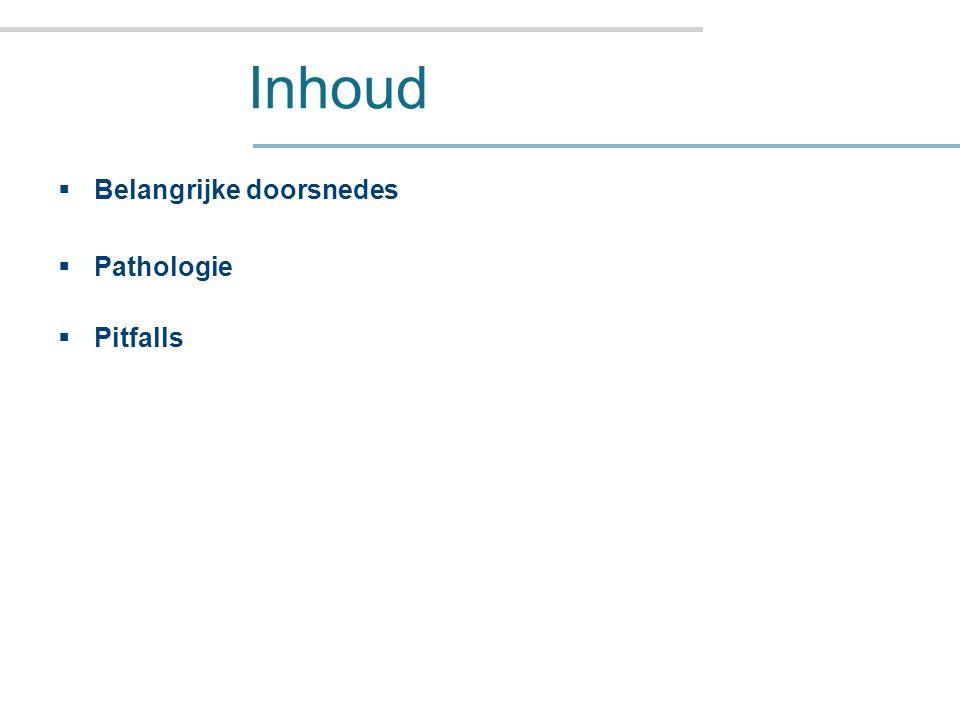 Sagitale doorsnedes Doorsnede 2 en 4: Parasagitaal, laterale ventrikel.