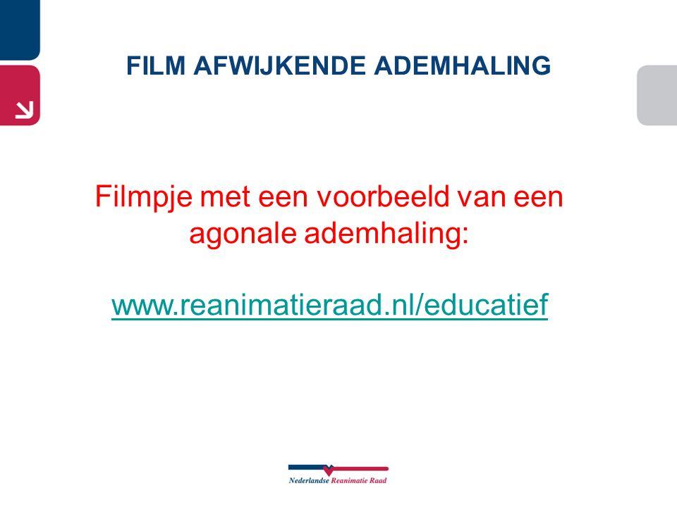 Filmpje met een voorbeeld van een agonale ademhaling: www.reanimatieraad.nl/educatief FILM AFWIJKENDE ADEMHALING