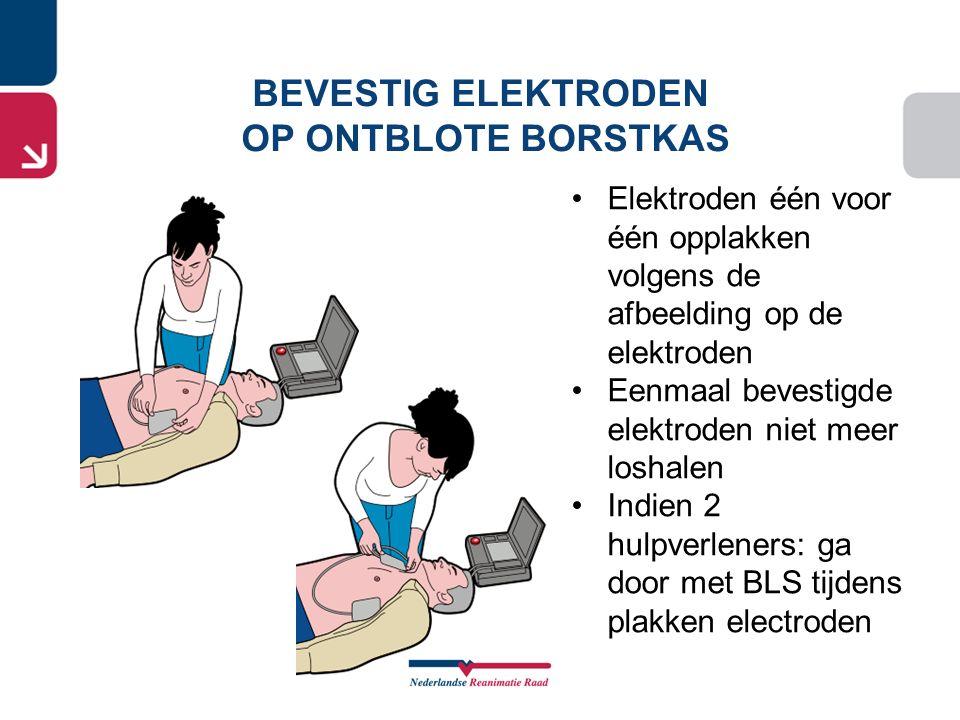 Elektroden één voor één opplakken volgens de afbeelding op de elektroden Eenmaal bevestigde elektroden niet meer loshalen Indien 2 hulpverleners: ga d