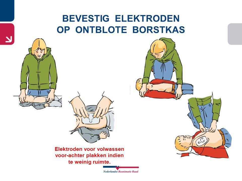 BEVESTIG ELEKTRODEN OP ONTBLOTE BORSTKAS Elektroden voor volwassen voor-achter plakken indien te weinig ruimte.