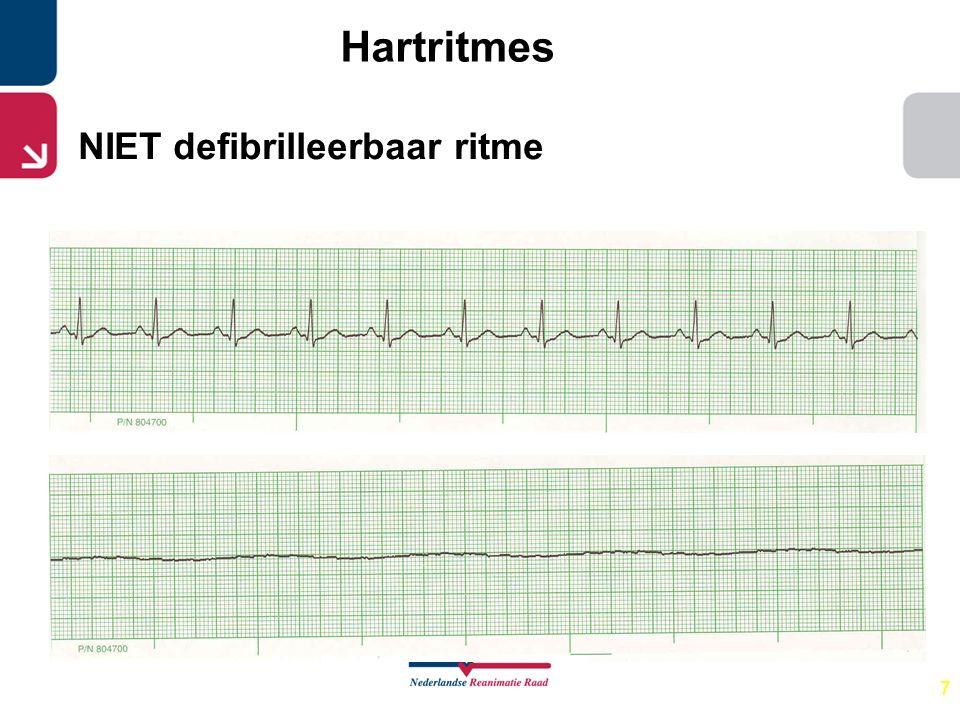 7 Hartritmes NIET defibrilleerbaar ritme
