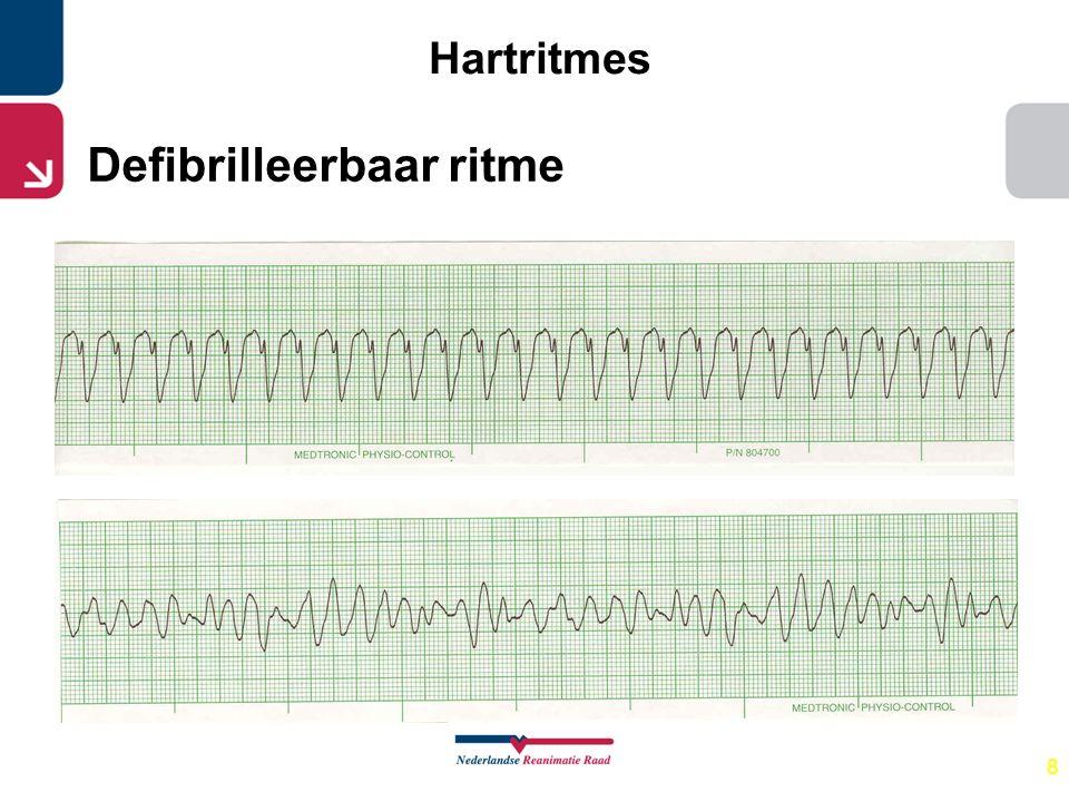 8 Hartritmes Defibrilleerbaar ritme