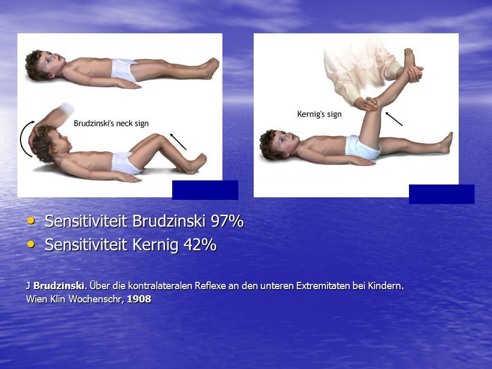 Sensitiviteit Brudzinski 97% Sensitiviteit Brudzinski 97% Sensitiviteit Kernig 42% Sensitiviteit Kernig 42% J Brudzinski.