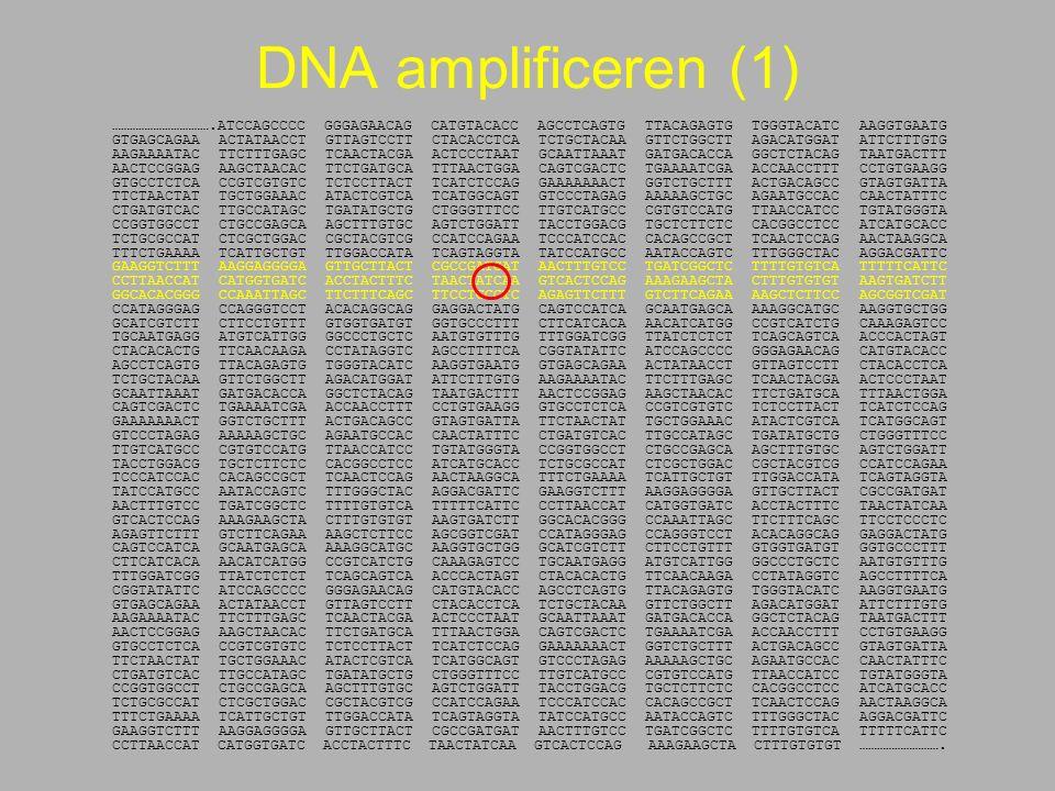 DNA amplificeren (1) …………………………….ATCCAGCCCC GGGAGAACAG CATGTACACC AGCCTCAGTG TTACAGAGTG TGGGTACATC AAGGTGAATG GTGAGCAGAA ACTATAACCT GTTAGTCCTT CTACACCTCA TCTGCTACAA GTTCTGGCTT AGACATGGAT ATTCTTTGTG AAGAAAATAC TTCTTTGAGC TCAACTACGA ACTCCCTAAT GCAATTAAAT GATGACACCA GGCTCTACAG TAATGACTTT AACTCCGGAG AAGCTAACAC TTCTGATGCA TTTAACTGGA CAGTCGACTC TGAAAATCGA ACCAACCTTT CCTGTGAAGG GTGCCTCTCA CCGTCGTGTC TCTCCTTACT TCATCTCCAG GAAAAAAACT GGTCTGCTTT ACTGACAGCC GTAGTGATTA TTCTAACTAT TGCTGGAAAC ATACTCGTCA TCATGGCAGT GTCCCTAGAG AAAAAGCTGC AGAATGCCAC CAACTATTTC CTGATGTCAC TTGCCATAGC TGATATGCTG CTGGGTTTCC TTGTCATGCC CGTGTCCATG TTAACCATCC TGTATGGGTA CCGGTGGCCT CTGCCGAGCA AGCTTTGTGC AGTCTGGATT TACCTGGACG TGCTCTTCTC CACGGCCTCC ATCATGCACC TCTGCGCCAT CTCGCTGGAC CGCTACGTCG CCATCCAGAA TCCCATCCAC CACAGCCGCT TCAACTCCAG AACTAAGGCA TTTCTGAAAA TCATTGCTGT TTGGACCATA TCAGTAGGTA TATCCATGCC AATACCAGTC TTTGGGCTAC AGGACGATTC GAAGGTCTTT AAGGAGGGGA GTTGCTTACT CGCCGATGAT AACTTTGTCC TGATCGGCTC TTTTGTGTCA TTTTTCATTC CCTTAACCAT CATGGTGATC ACCTACTTTC TAACTATCAA GTCACTCCAG AAAGAAGCTA CTTTGTGTGT AAGTGATCTT GGCACACGGG CCAAATTAGC TTCTTTCAGC TTCCTCCCTC AGAGTTCTTT GTCTTCAGAA AAGCTCTTCC AGCGGTCGAT CCATAGGGAG CCAGGGTCCT ACACAGGCAG GAGGACTATG CAGTCCATCA GCAATGAGCA AAAGGCATGC AAGGTGCTGG GCATCGTCTT CTTCCTGTTT GTGGTGATGT GGTGCCCTTT CTTCATCACA AACATCATGG CCGTCATCTG CAAAGAGTCC TGCAATGAGG ATGTCATTGG GGCCCTGCTC AATGTGTTTG TTTGGATCGG TTATCTCTCT TCAGCAGTCA ACCCACTAGT CTACACACTG TTCAACAAGA CCTATAGGTC AGCCTTTTCA CGGTATATTC ATCCAGCCCC GGGAGAACAG CATGTACACC AGCCTCAGTG TTACAGAGTG TGGGTACATC AAGGTGAATG GTGAGCAGAA ACTATAACCT GTTAGTCCTT CTACACCTCA TCTGCTACAA GTTCTGGCTT AGACATGGAT ATTCTTTGTG AAGAAAATAC TTCTTTGAGC TCAACTACGA ACTCCCTAAT GCAATTAAAT GATGACACCA GGCTCTACAG TAATGACTTT AACTCCGGAG AAGCTAACAC TTCTGATGCA TTTAACTGGA CAGTCGACTC TGAAAATCGA ACCAACCTTT CCTGTGAAGG GTGCCTCTCA CCGTCGTGTC TCTCCTTACT TCATCTCCAG GAAAAAAACT GGTCTGCTTT ACTGACAGCC GTAGTGATTA TTCTAACTAT TGCTGGAAAC ATACTCGTCA TCATGGCAGT GTCCCTAGAG AAAAAGCTGC AGAATGCCAC CAACTATTT