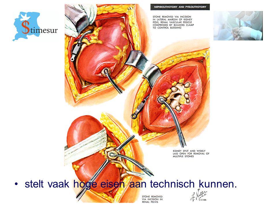 Stimesur Stichting Medische ondersteuning gezondheidszorg Suriname Benadering steen in midden deel van de ureter